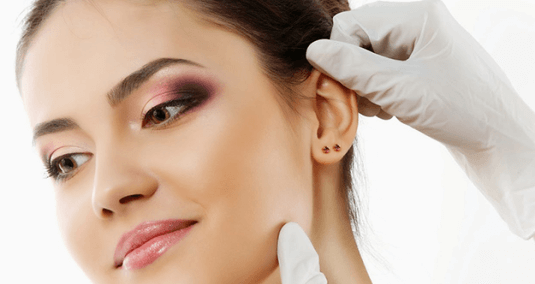 kepçe kulak estetiği kadın kulağı