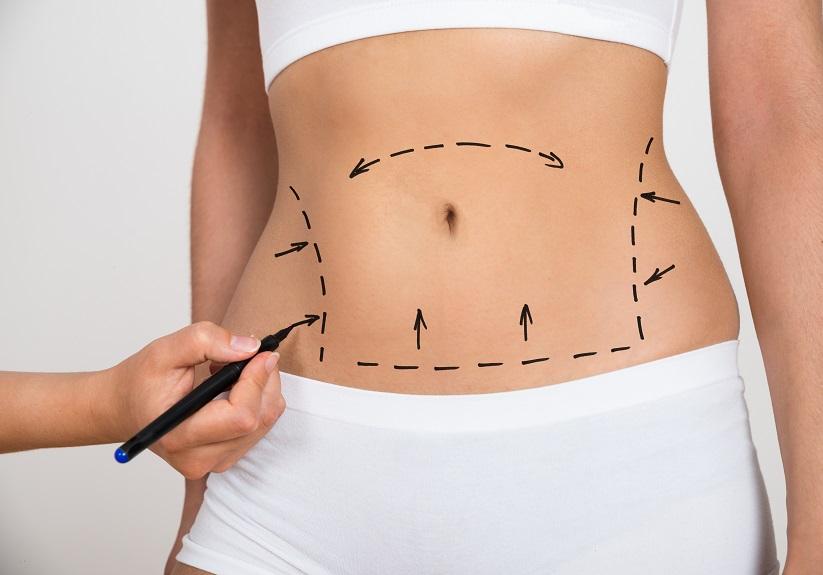 plastik cerrahi karın germe abdominoplasti karın işaretleme